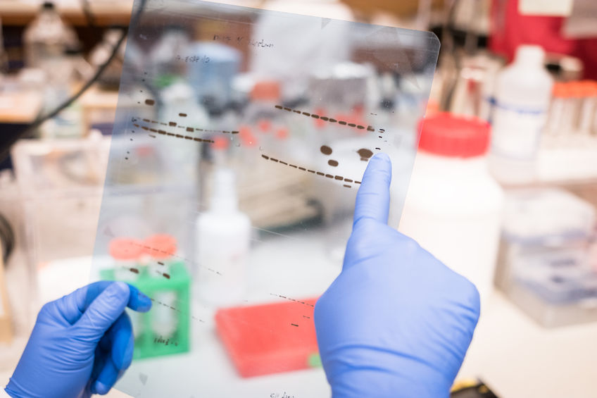 61598667 - researcher working on western blot results